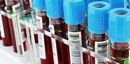 Raccogliere, processare, conservare campioni plasmatici